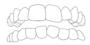 Zahnarzt-Hamburg-Hoheluft-Dr-Amani-Kiefer-Engstand