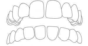 Zahnarzt-Hamburg-Hoheluft-Dr-Amani-Kiefer-Lueckenstand