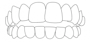 Zahnarzt-Hamburg-Hoheluft-Dr-Amani-Kiefer-Offener-Biss