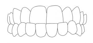 Zahnarzt-Hamburg-Hoheluft-Dr-Amani-Kiefer-Progenie