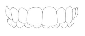 Zahnarzt-Hamburg-Hoheluft-Dr-Amani-Kiefer-Tiefbiss